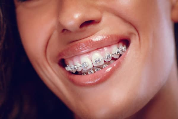 Close-up of a woman's white teeth with braces and smile.